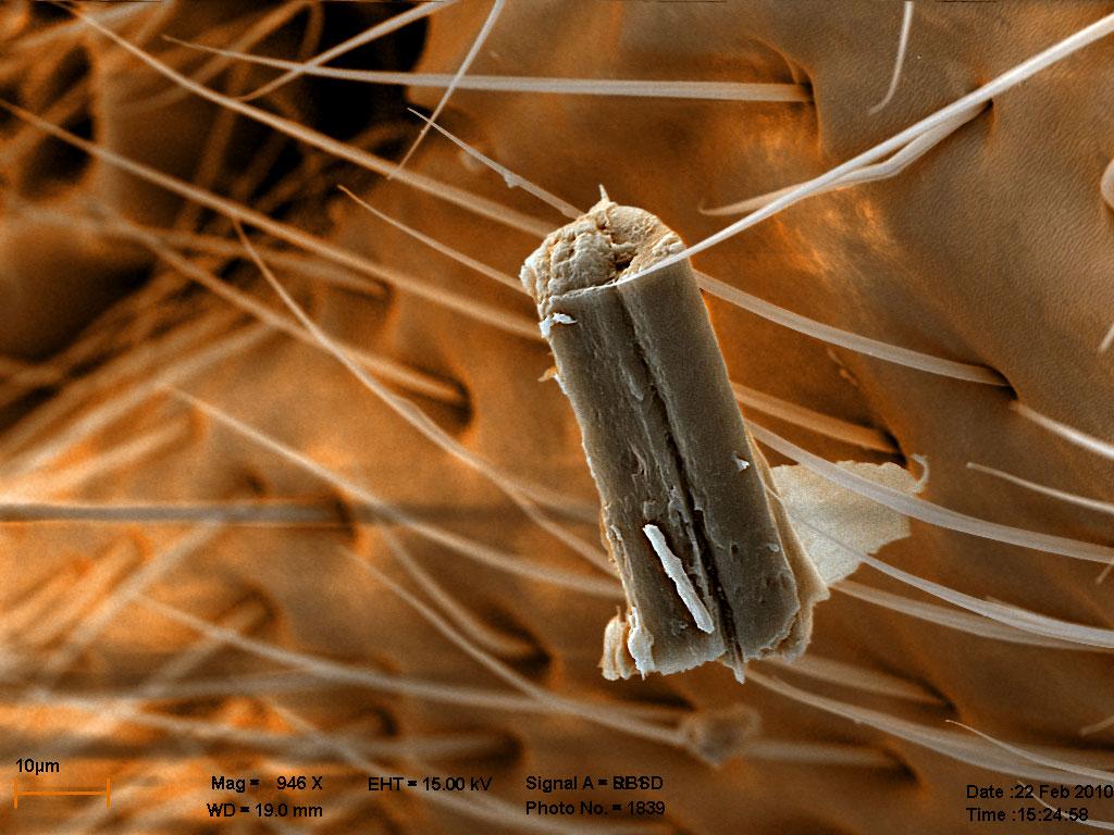 осколок чего-то рядом с дыхальцем самца Diacamma rugosum, комбинация двух изображений, цвет - для наглядности